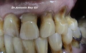Bruxismo.Diagnóstico y tratamiento.Cuellos dentales
