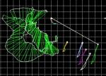 Representación del eje helicoidal (Helicoidal Axis )