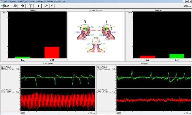 Análisis movimiento mandibular muscular EMG